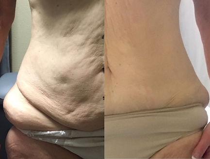 Lipo Melt Results