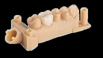 dental model resin sample 2.png