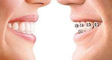 Odontologia en Cali ortodoncia
