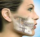 Odontologia en Cali Cirugía Maxilofacial