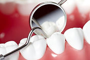 Odontologia en Cali Peridoncia