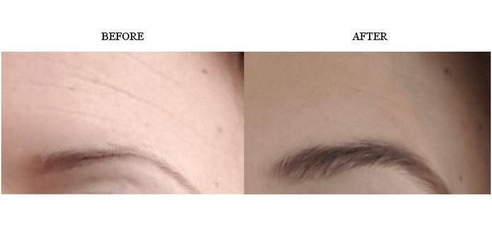 lise-brown-before-after-results.jpg