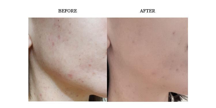 lise-brown-before-after-result-skin-irritation