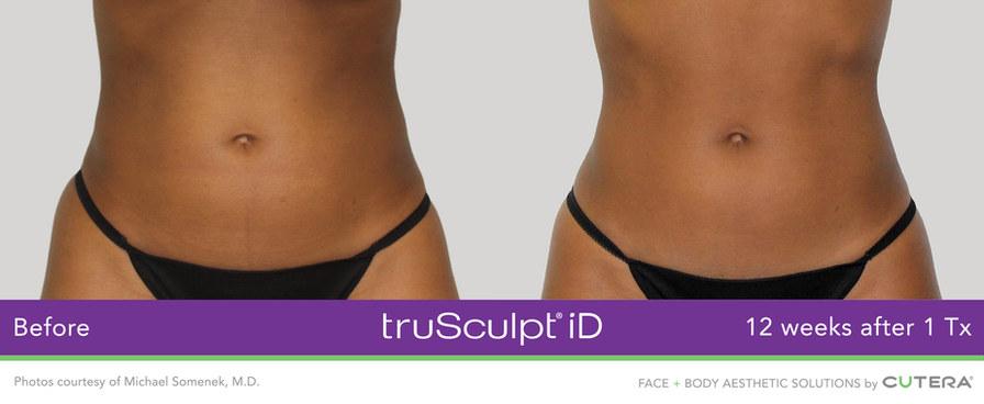 truSculpt-iD-Somenek-3.jpg