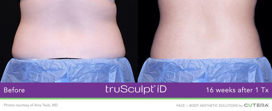 truSculpt-iD-Amy-Taub-MD-1.jpg
