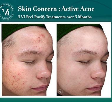 VI Peel Skin Concern Acne