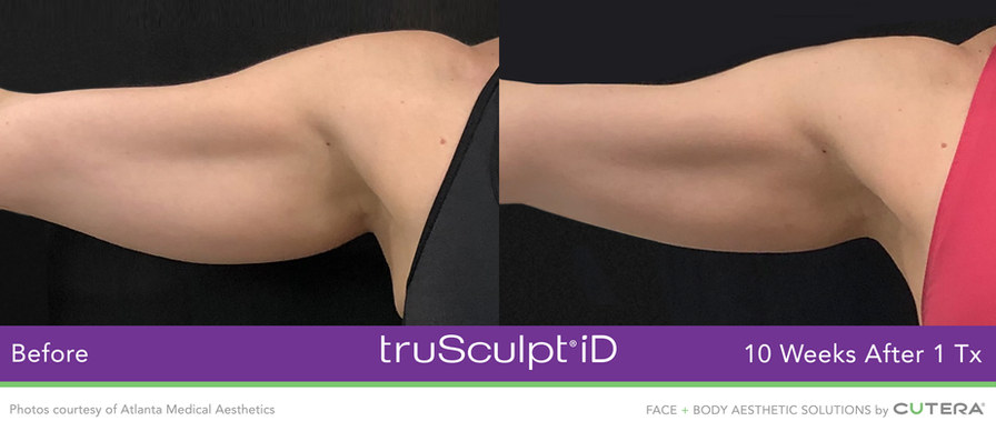 truSculpt-iD-Atlanta-Medical-Aesthetics.