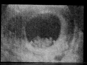 Ja'Nai's 5th HG Pregnancy