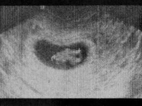 Ja'Nai's 3rd HG Pregnancy