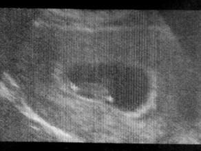 Ja'Nai's 4th HG Pregnancy