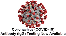 coronavirus covid-19 antibody lab testin