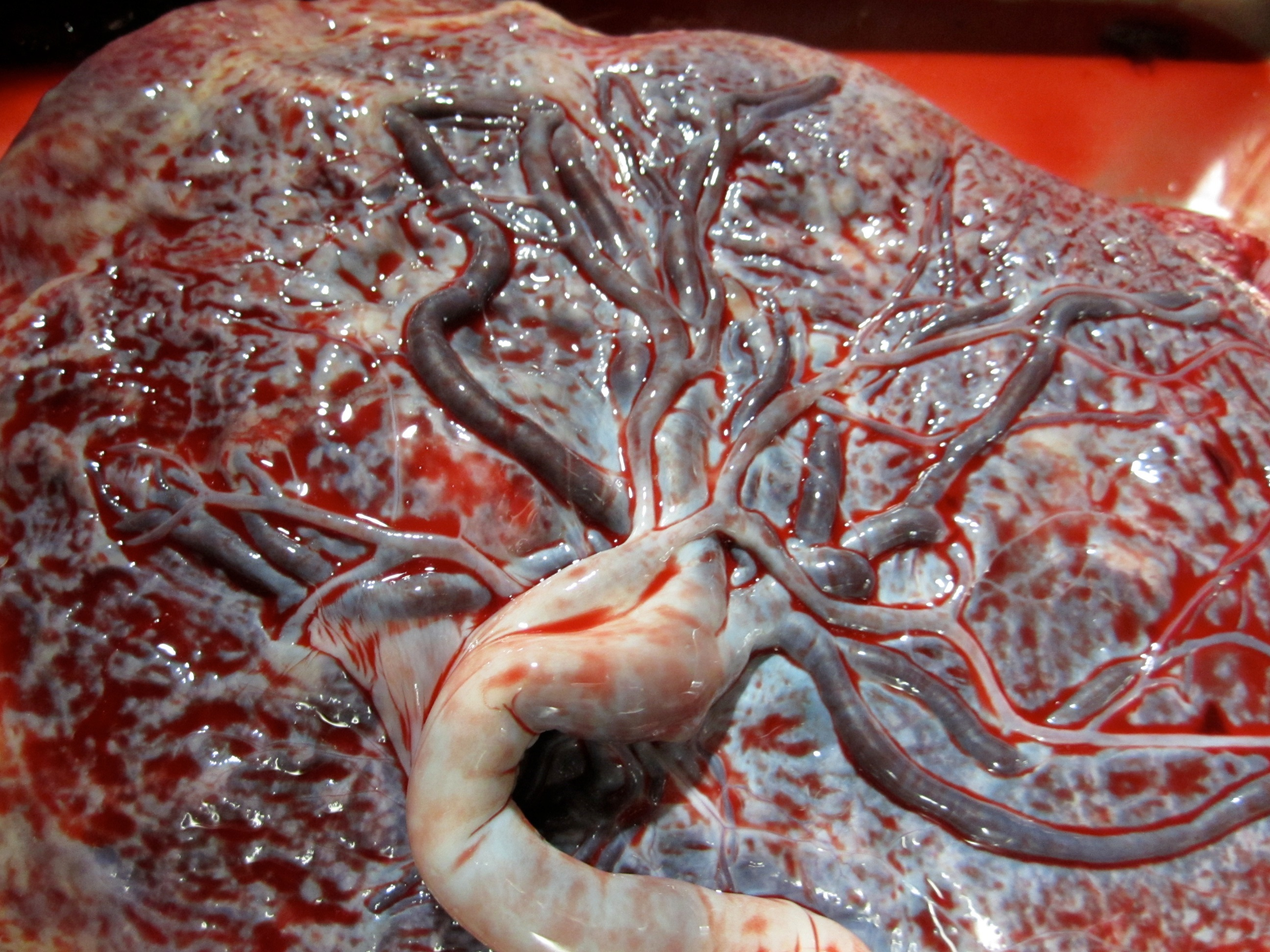 placenta :: heart-centered mamas