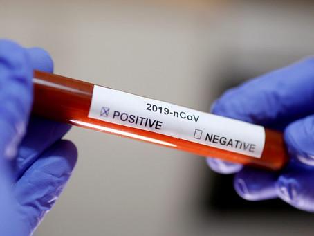 São Marcos passa dos 70 casos de coronavírus