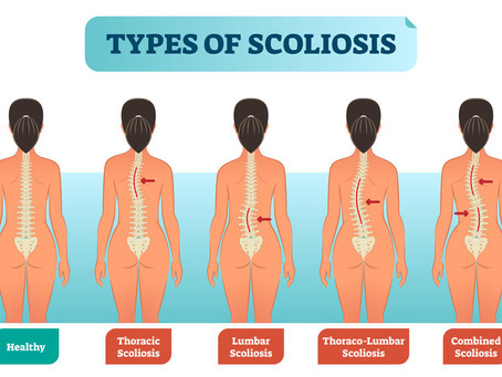 Do you have Scoliosis?