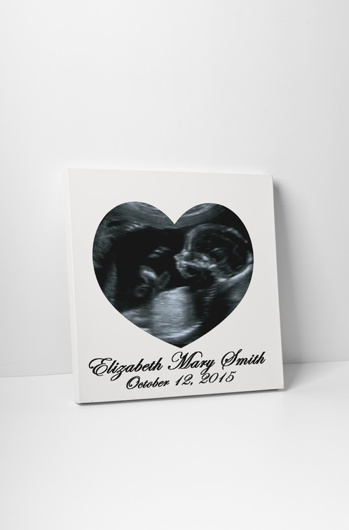 Personalized ultrasound picture frame to canvas