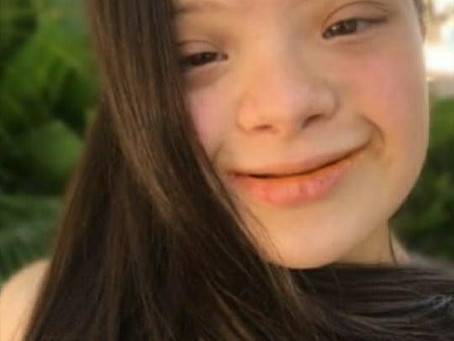 COVID 19 and People with Down Syndrome