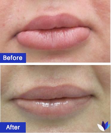 1-BA-Lip-Reduction.png