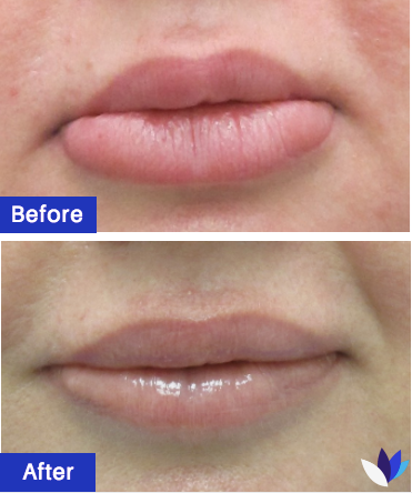 1-BA-Lip-Reduction.png