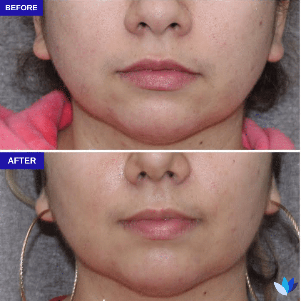 1-BA-Buccal-Fat-Removal.png