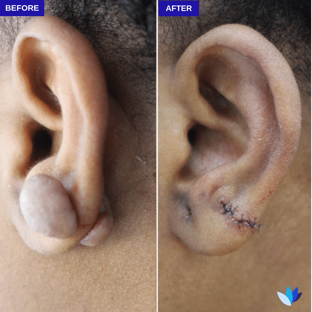 1-BA-Keloid-Excision.png