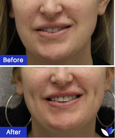 1-BA-Dimpleplasty.png