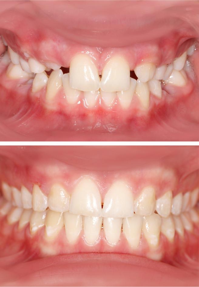 adamstuen tannregulering, manglende tenner i overkjeven.