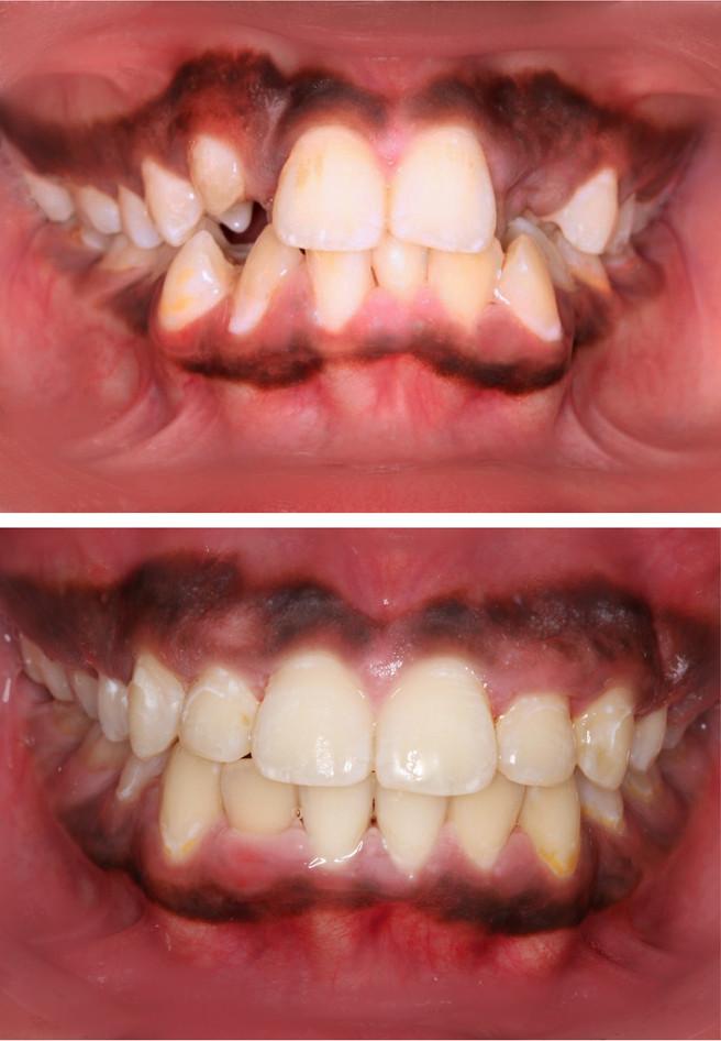 adamstuen tannregulering_pasient 3_stor_