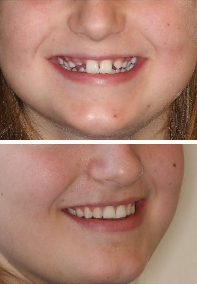 adamstuen tannregulering pasient 2 mangl