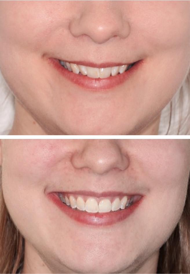 før etter smil pasient 1.jpg