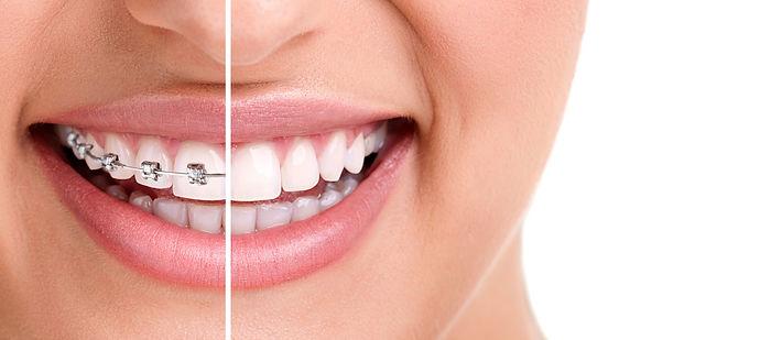 tannregulering foran og bak tennene.