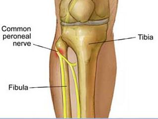 Fibular Nerve Dysfunction