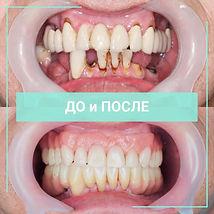 cs964o_s3Kc.jpg