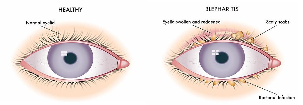 Healthy Eye vs Unhealthy Eye