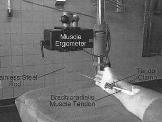 Biomechanical Assistance Equipment for Surgical Tendon Transfer