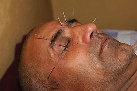 Akupunktur acupunture Nadeln
