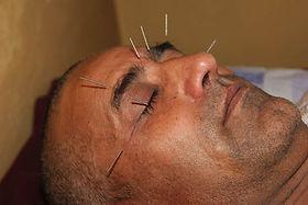 Akupunktur acupunture Nadeln, Praxis für Akupunktur Isabella Rösinger in Wiesbaden Heilpraktiker