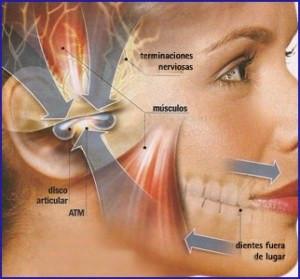 Bruxismo y dolor de mandíbula