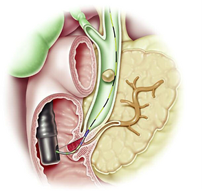 ERCP-Figure-2.png