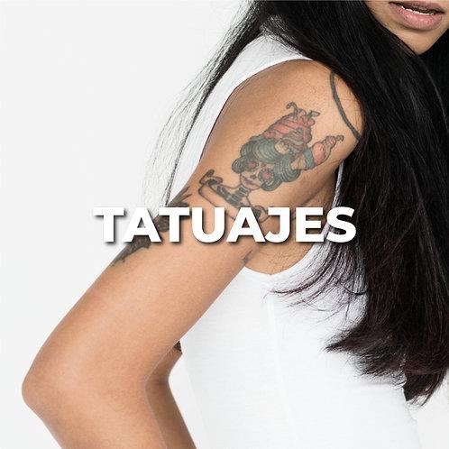Remoción de tatuaje | Chico