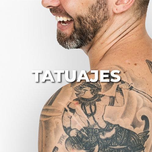 Remoción de tatuaje | Grande