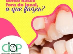 E quando o dente nasce fora do lugar, o que fazer?