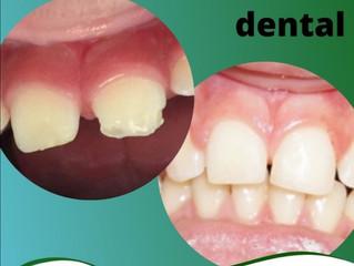 Restauração Dental.
