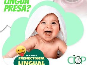 Frênulo Lingual.