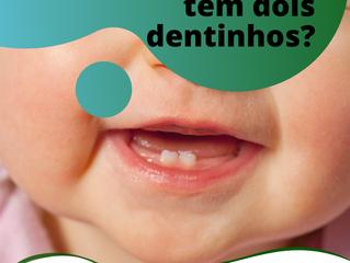 Cárie, mas o bebê só tem dois dentinhos?