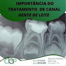 A importância do tratamento de canal em dente de leite.