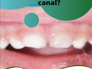 Dente escuro faz CANAL?