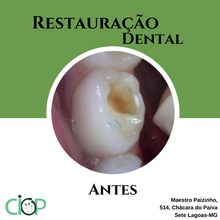 Restauração dental .