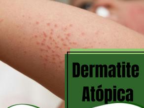 Dermatite atópica.
