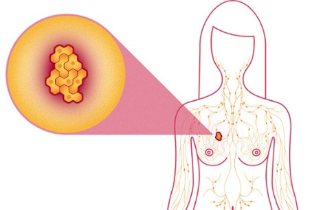 Cancer Fact Monday: Why does breast cancer kill women?