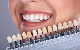 faccette dentali.jpg